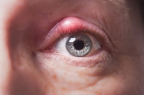 Close up image of Blepharitis or eye inflammation